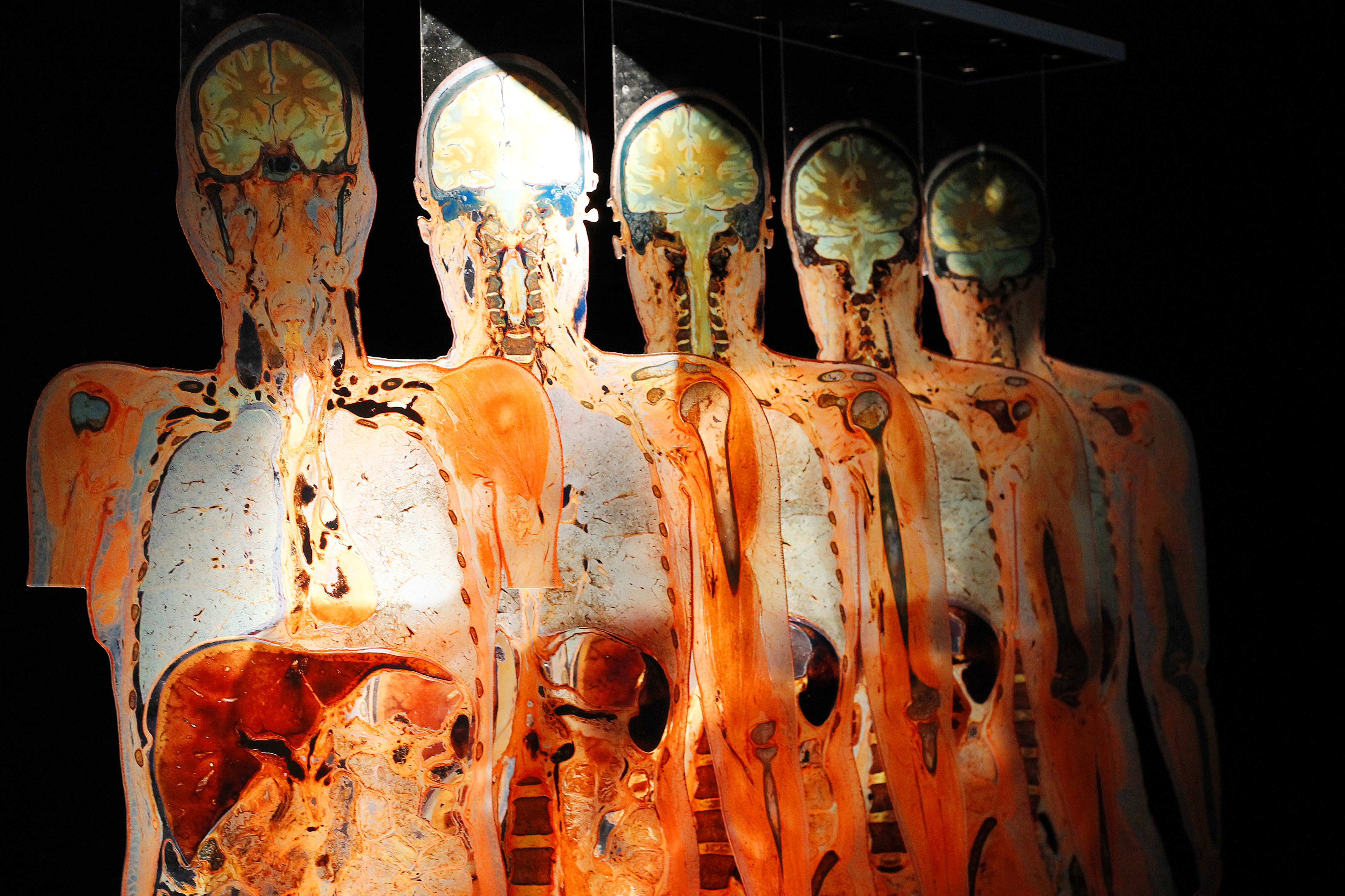 Body Worlds Rx At Mcwane Science Center
